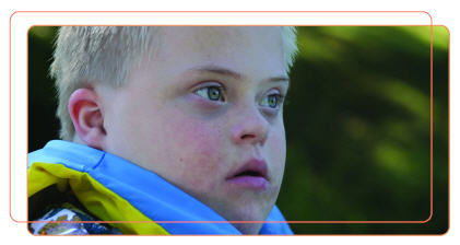 Photo of Boy with Down's Syndrome